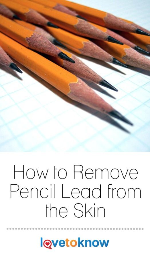 Removal Of Pencil Lead From The Skin Lovetoknow Pencil Led Pencils How To Remove