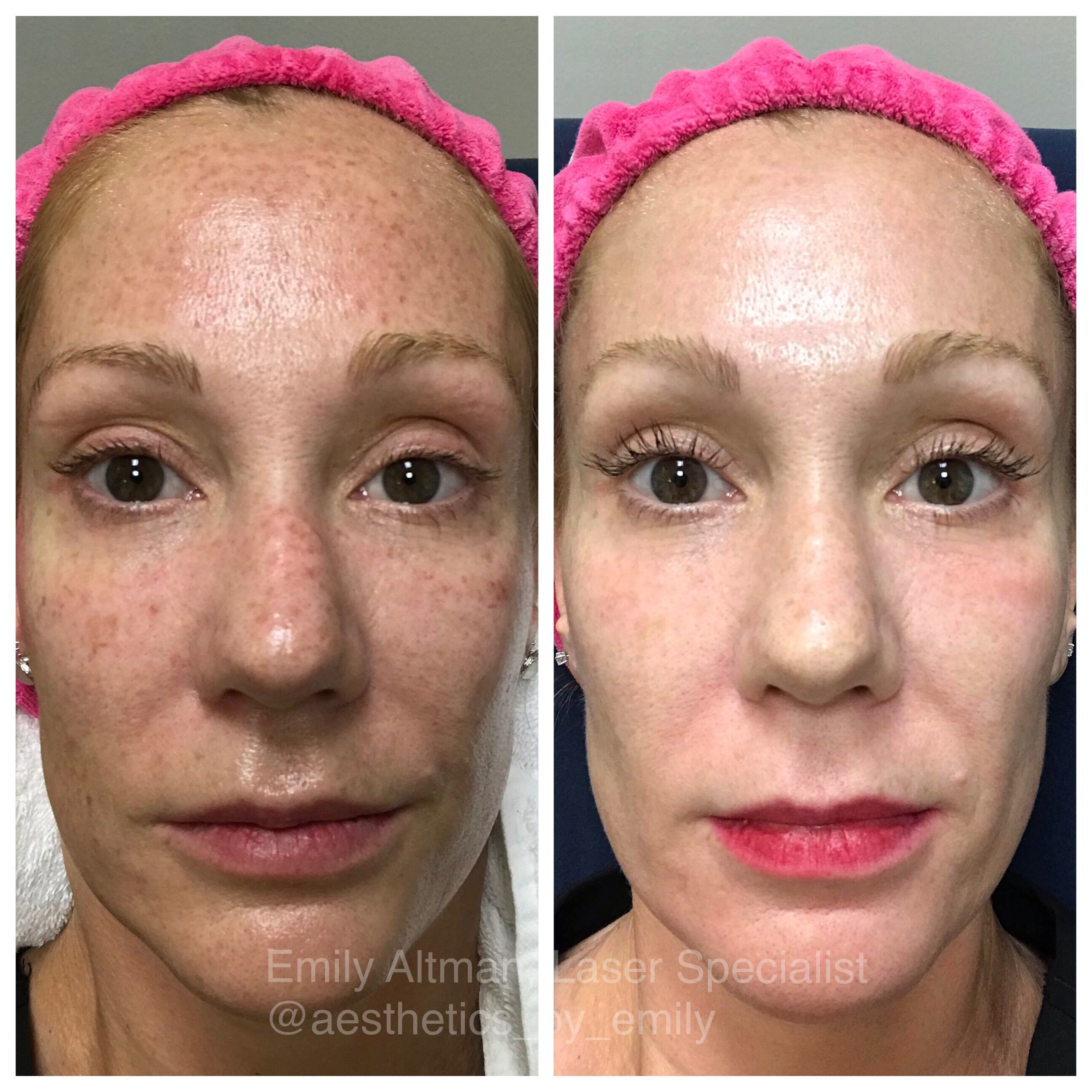 Ipl Before After Laser Skin Ipl Treatment Treat Skin