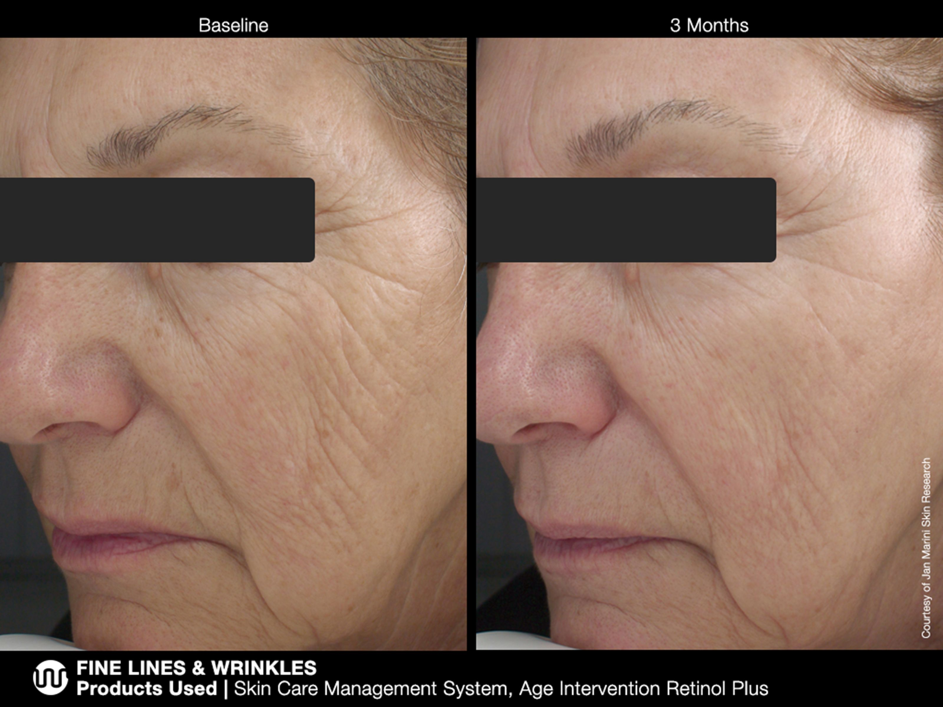 Fine Lines Wrinkles Products Used Skin Care Management System And Age Intervention Retinol Plus Http Www Janmarini Com Results Photo Asp Id 7