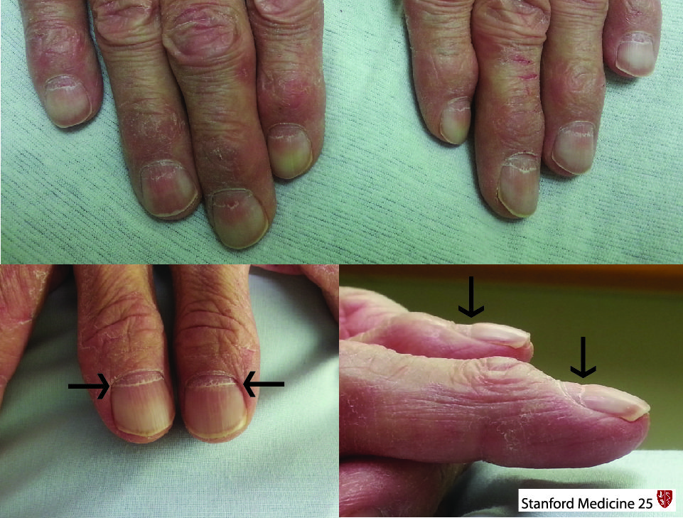 What S The Cause Of These Nail Findings Click For Answer Via Stanford Lung Disease Nails Doctor Medical