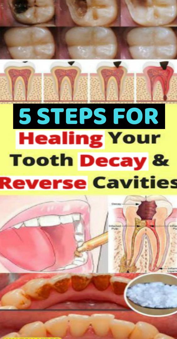 Zähne und Zahnfleisch machen es auch zusätzlich zu schätzen, Pflege und einfach für auf …   – Workout
