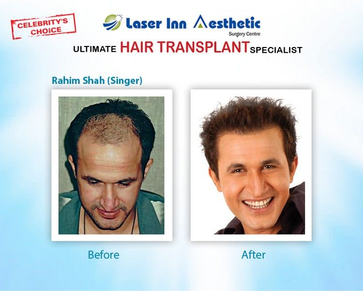 Famous Singer Rahim Shah After Hair Transplant Hairtransplantinpakistan Hairtransplantinkarachi Hairt Hair Transplant Best Hair Transplant Cool Hairstyles
