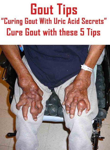 medicamentos para la gota zumba acido urico y alimentos prohibidos acido urico en ingles como se escribe