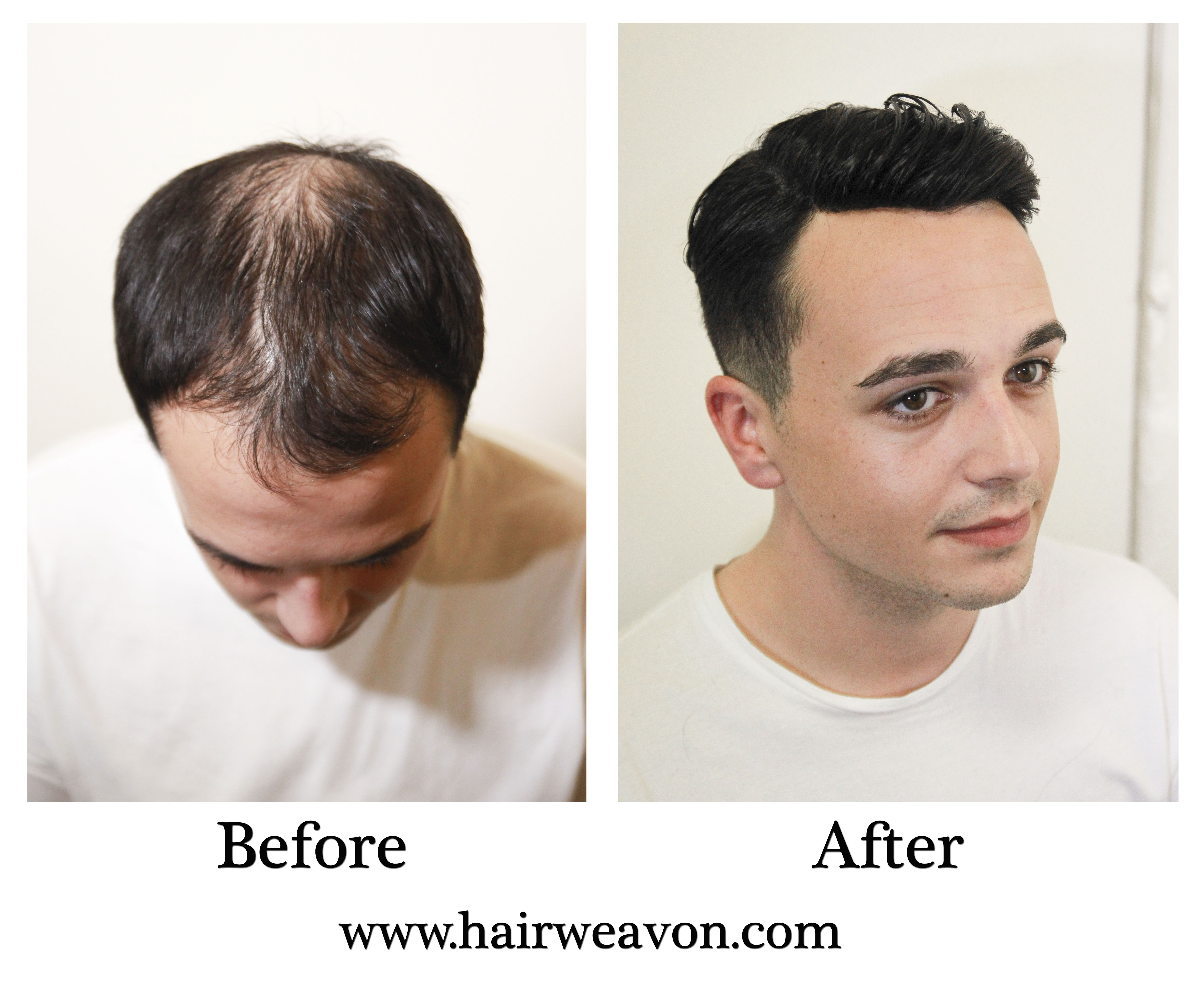 pin by hairweavon on mens hair replacement | pinterest | wig