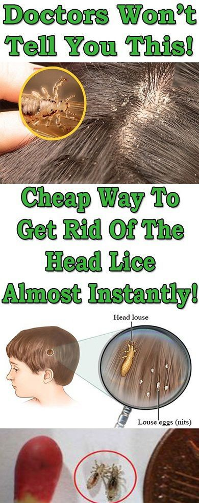 DOCTORS WON'T TELL YOU THIS – CHEAP WAY TO GET RID OF THE HEAD LICE ALMOST  INSTANTLY! | Head louse, Head lice remedy, Louse
