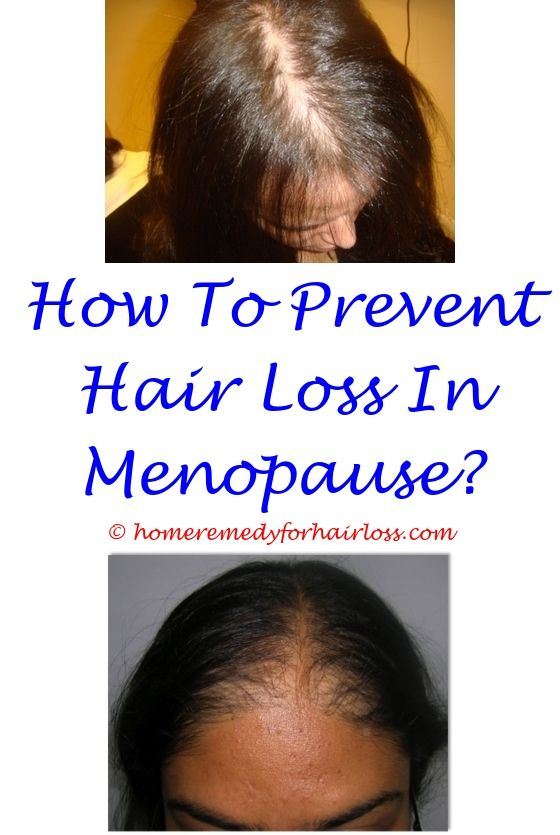 Female Hair Loss | Hair loss, Grow long hair and Female hair