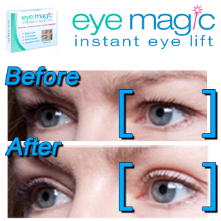 for Drooping Upper Eyelids-Best Anti-Aging Eyelid Lift | Why Didn't
