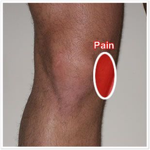 Medial collateral ligament (MCL) injury