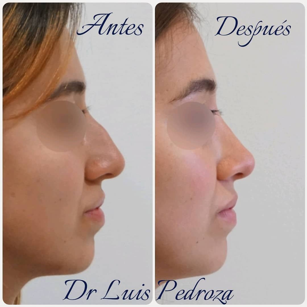Immediate result Primary nose job. Results Naturales, Sin