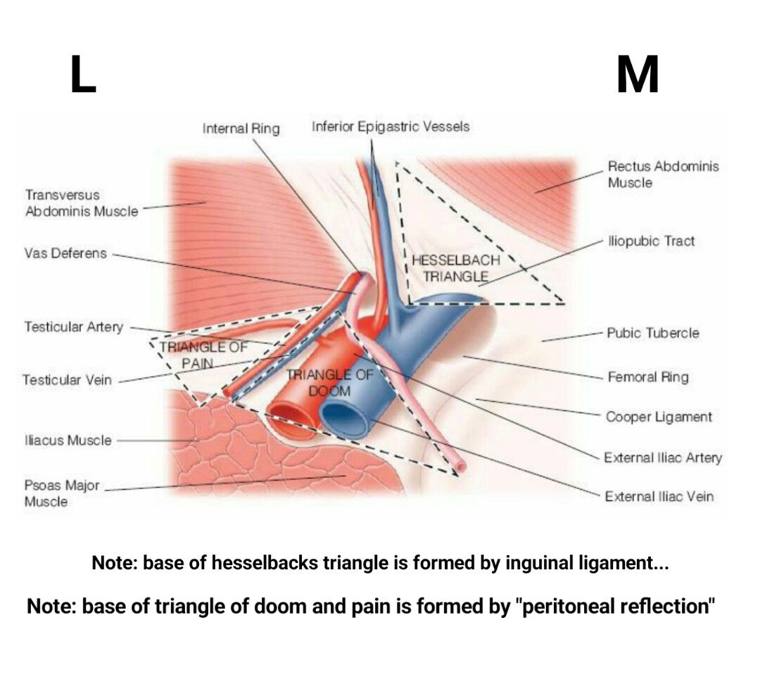hight resolution of lateral side of triangle of pain is formed by illiopubic tract note inguinal ligament forms boundary of both femoral hesselbachs triangle