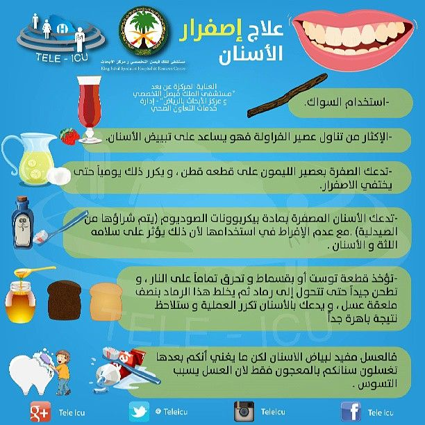 علاج إصفرار الأسنان Health Health Tips Baby Education