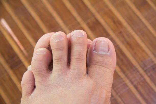 How Long Does It Take For Coconut Oil To Kill Nail Fungus-Toenail Fungus Cure Apple Cider Vinegar