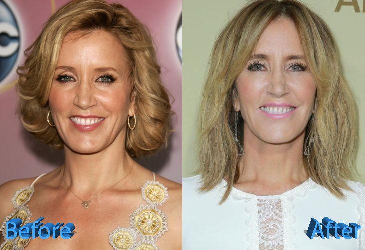 Top Celebrity Surgery | Celebrity Plastic Surgery News ...