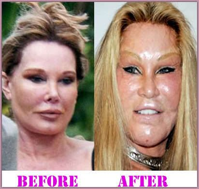 Cat Woman (Jocelyn Wildenstein) Plastic Surgery Before And ...