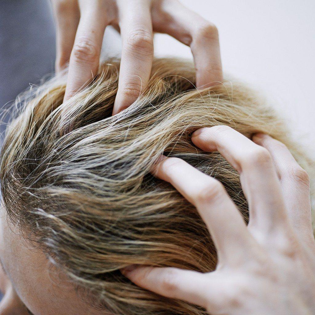 Modern Hair Transplants Look Surprisingly Natural — Here's