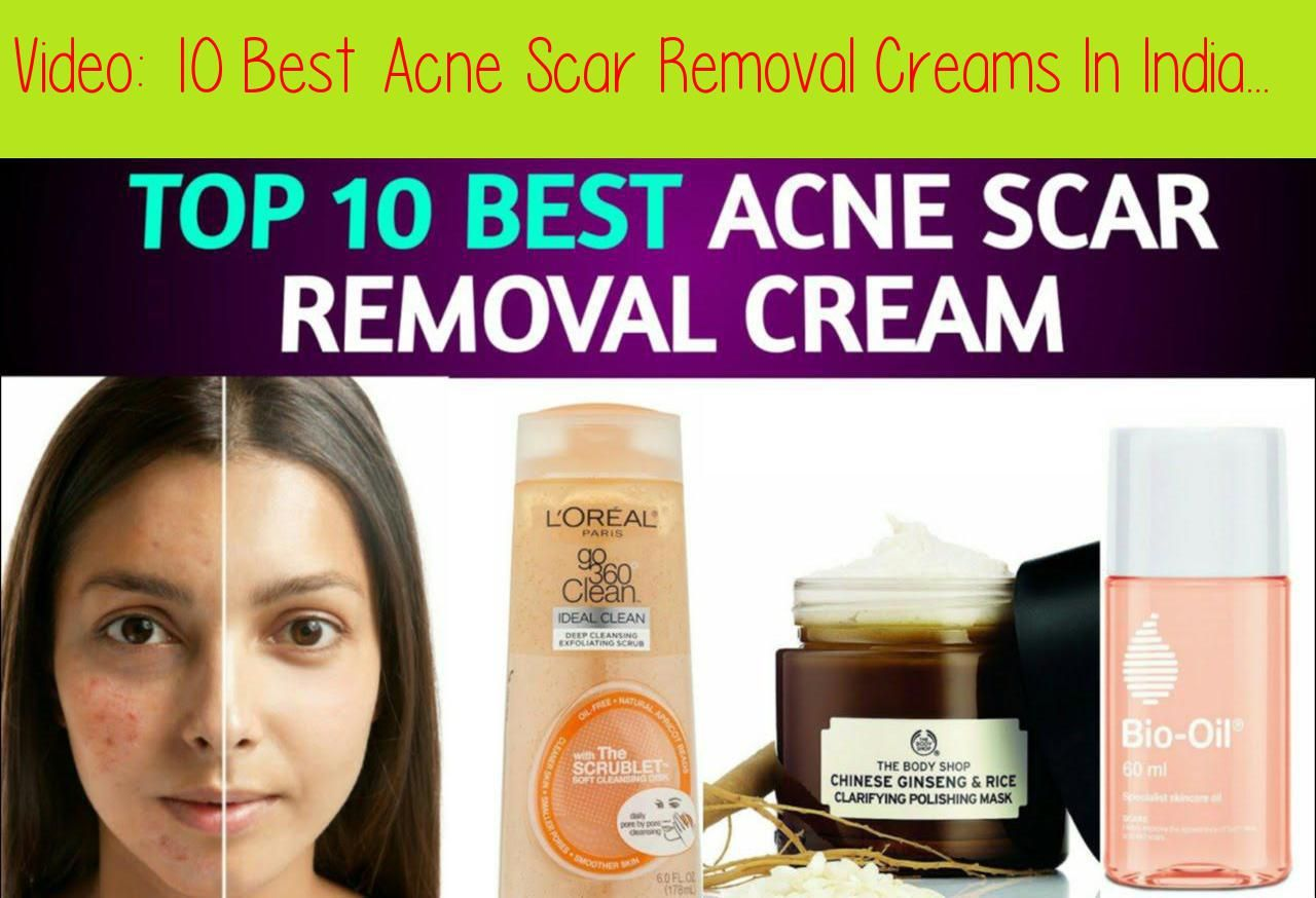 best cream for acne scars