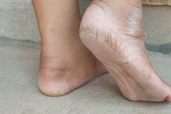 bőrkeményedés valódi oka