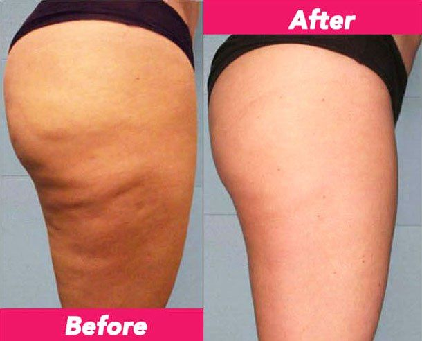 Pin On Revitol Cellulite Solution