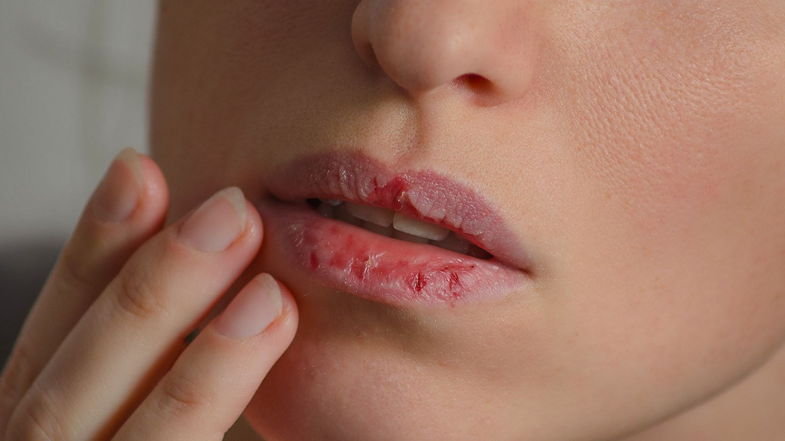 8 Dehydration Symptoms Most People Ignore Chapped Lips