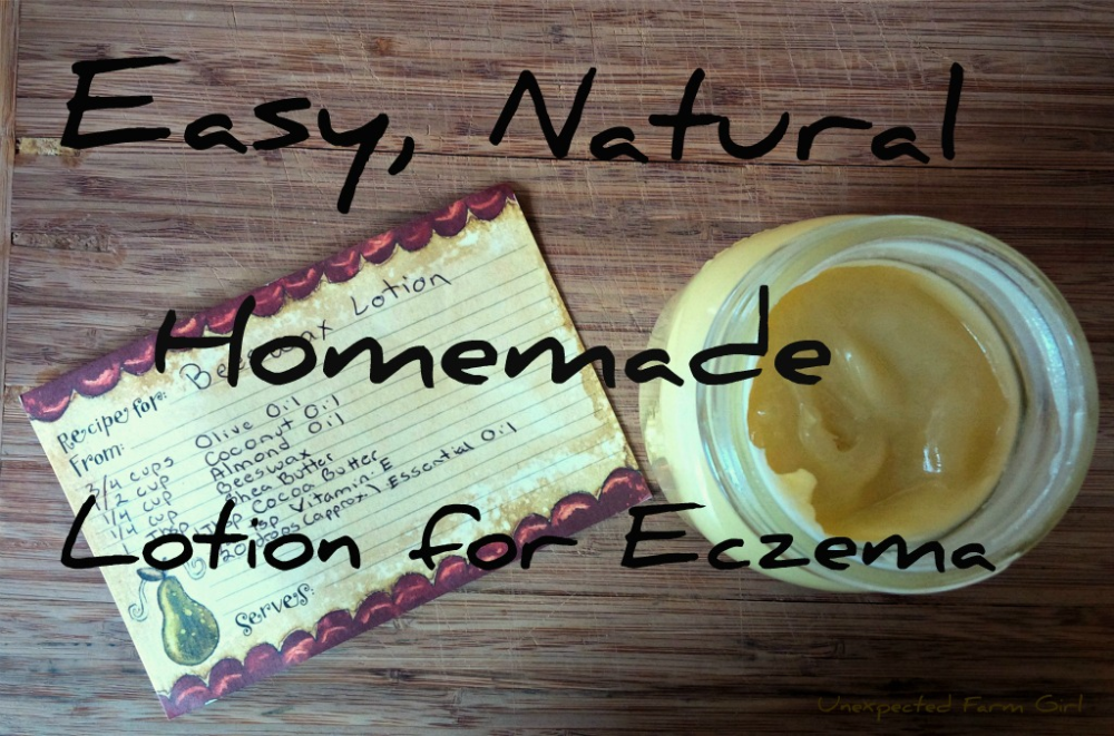 Easy, Natural Homemade Lotion for Eczema Survival Mom