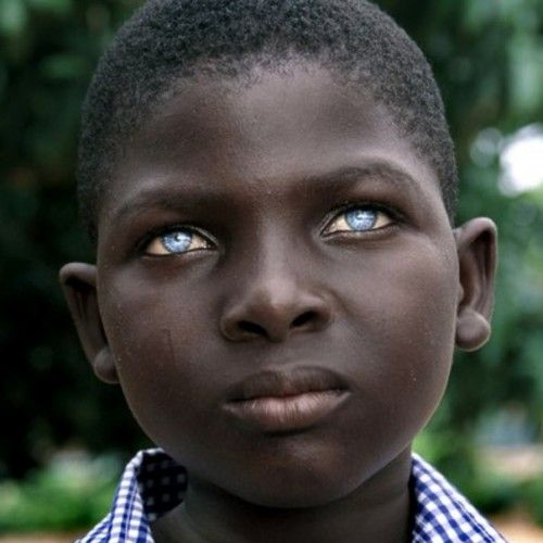 ॐ The Histamiin People Are Renown For Their Dark Skin