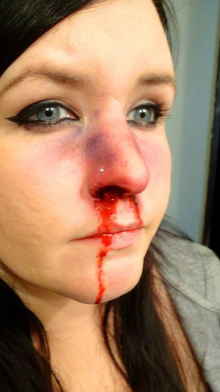 how to heal cut in nose