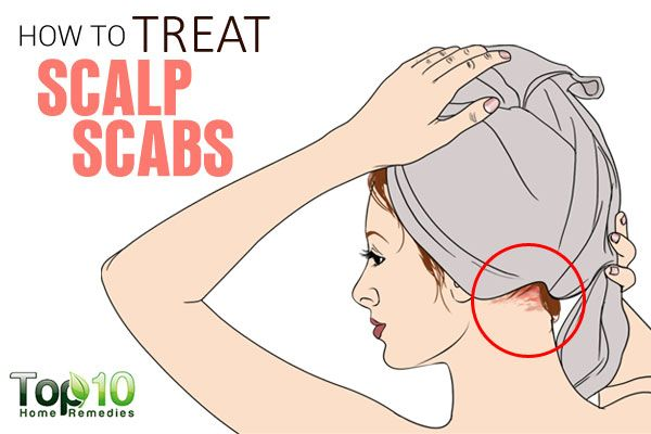 How To Get Rid Of Scabs In Your Hair