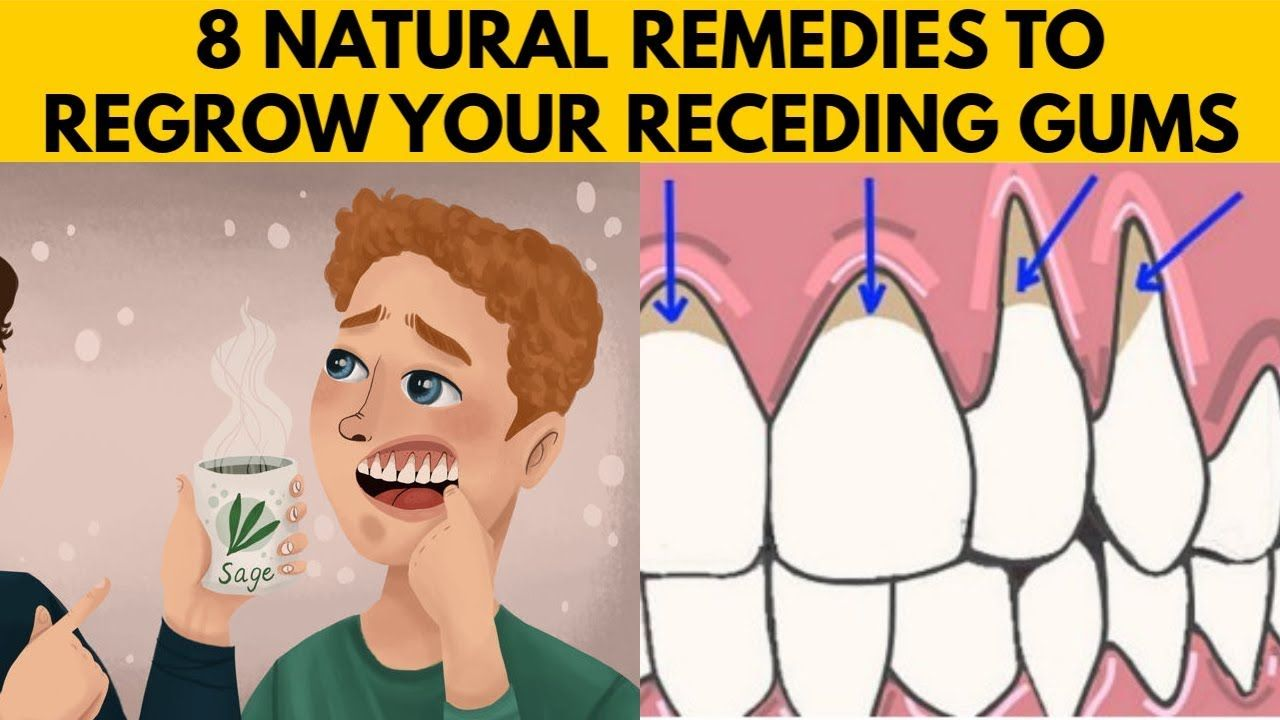 8 EASY Ways to GROW BACK Your Receding Gums Naturally AT