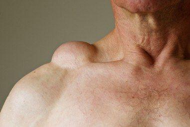 Cara Cepat Menghilangkan Benjolan Lipoma