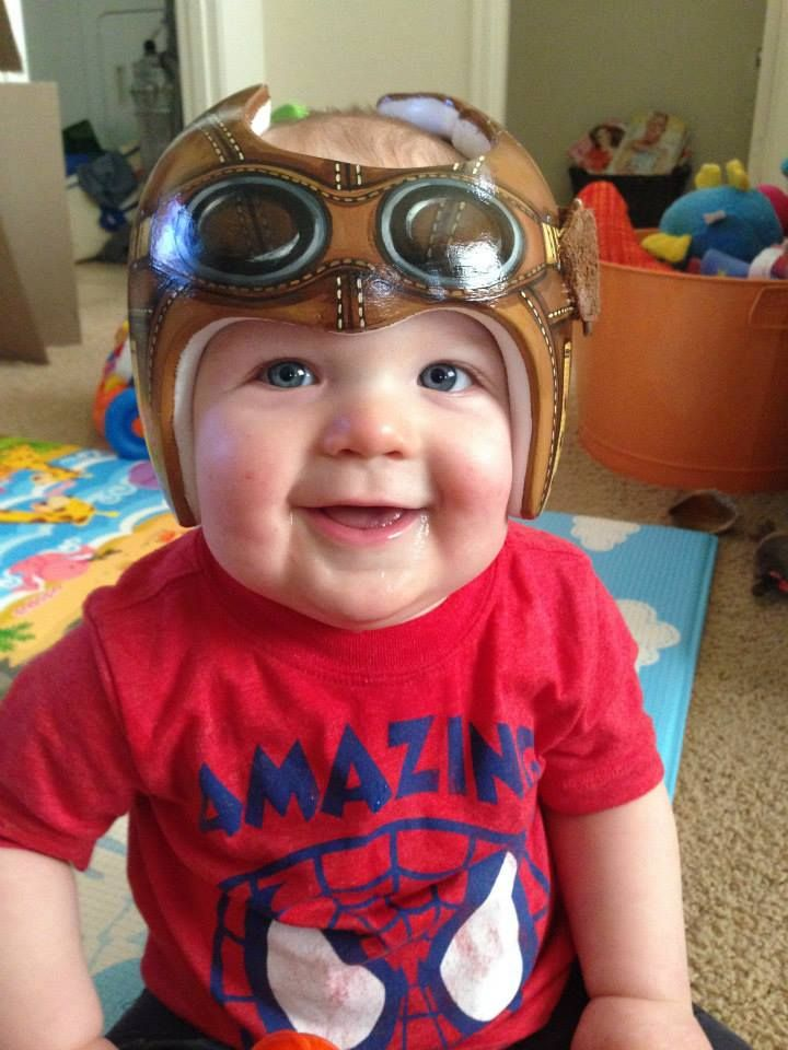 Amazingly Creative Helmets For Babies With Plagiocephaly Helmets - Baby helmet decals