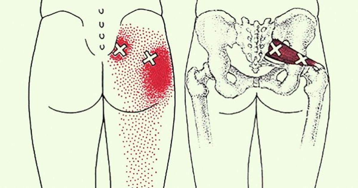 6 estiramientos para la ciática para prevenir y aliviar el dolor de ...