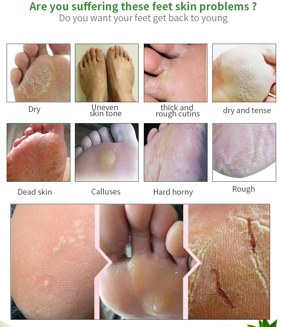 foot cream that removes dead skin