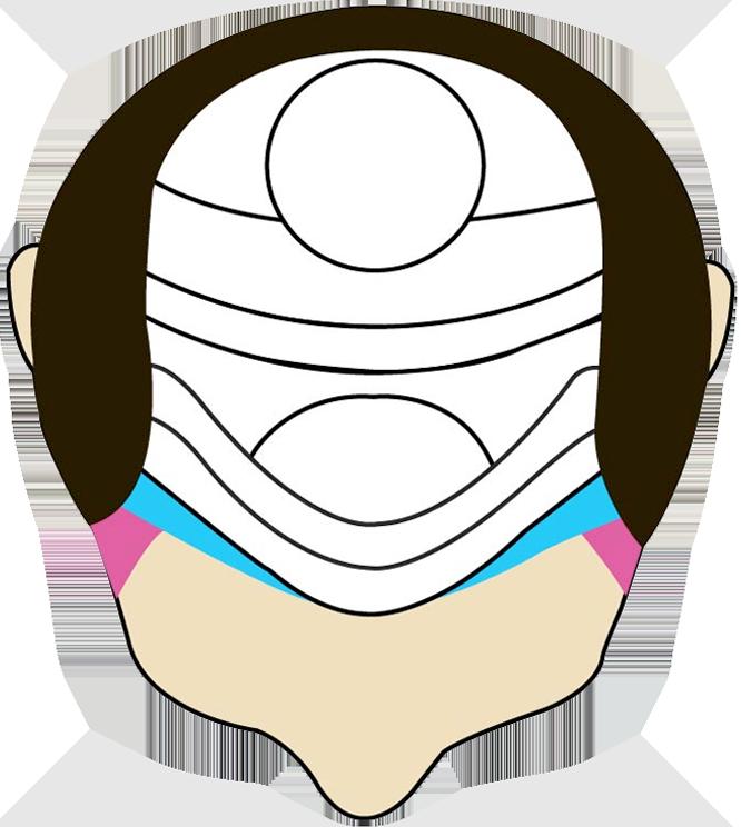 Escala Norwood Tipo 2 | Gardel Hair Restoration Institute