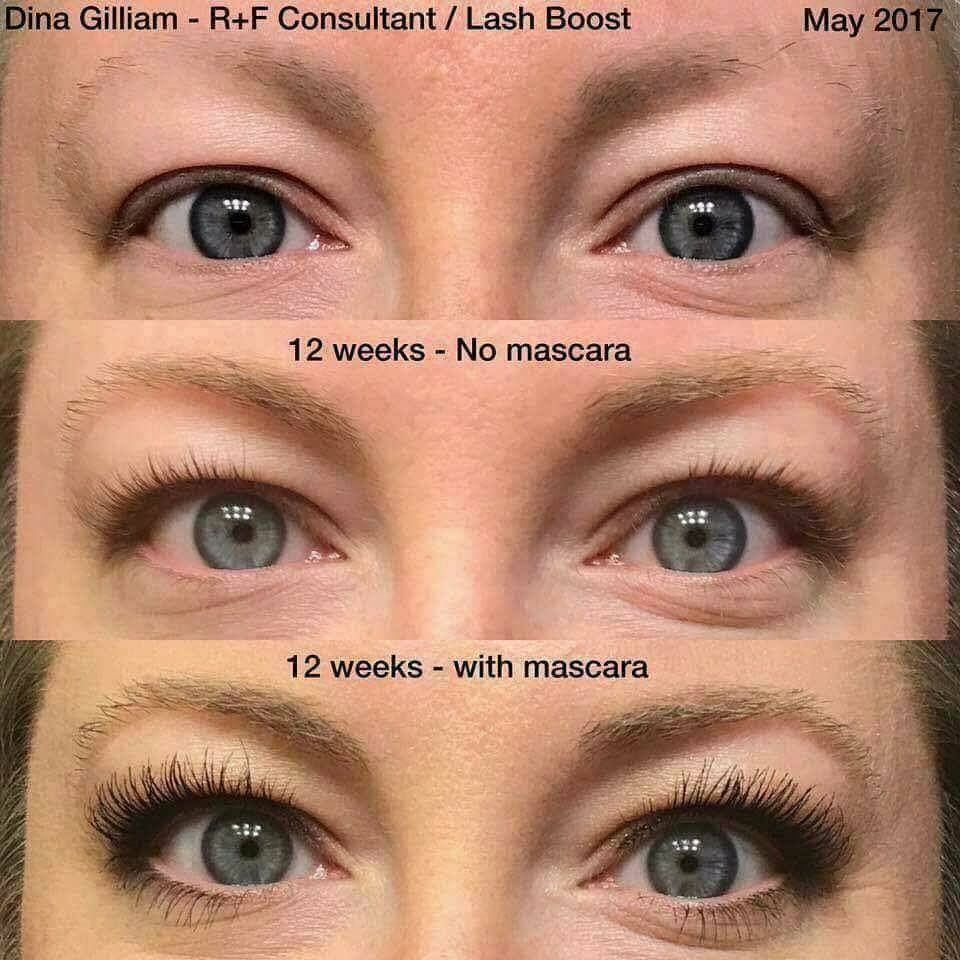 After chemo dina started using lash boost on her lashes