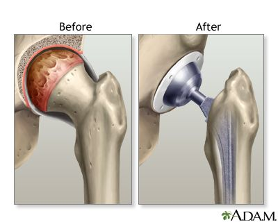 33+ Osteoporosis and total hip replacement ideas in 2021