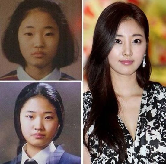 Park Min Young Plastic Surgery Many Of You Will Surely Know Who