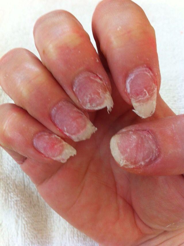 Acrylics Thin Out Your Nails Nail Repair Thin Nails Nails After Acrylics