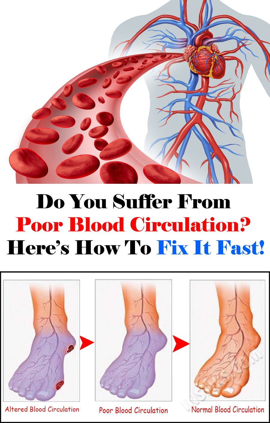 Do you suffer from poor blood circulation heres how to