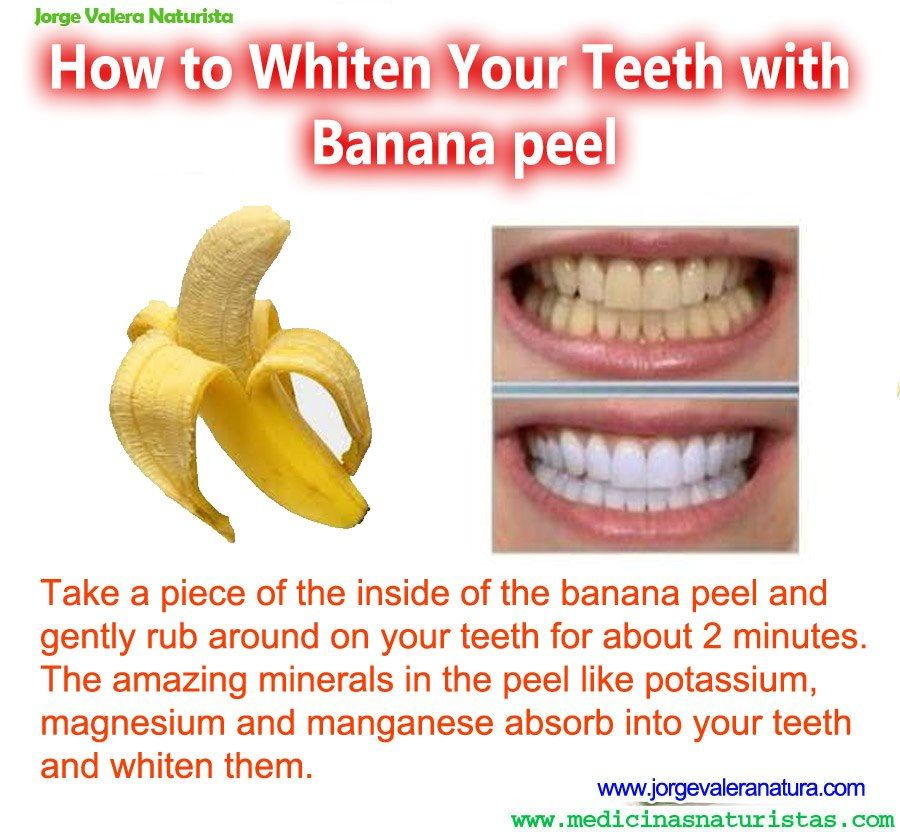 banana peel Don't toss that banana peel this nutrient-dense part of the beloved fruit is more valuable than you think – it can heal wounds, whiten teeth, prevent minor infections, and even purify water next time you eat a banana, try biting into the peel too or, at least, rubbing the inside on your face it's good for you – we.