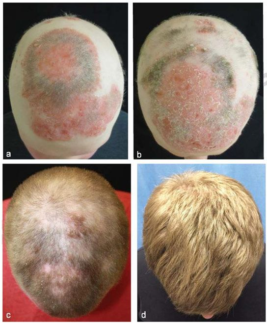 Alopecea areata in kuwaiti patients with dermoscopy view of some cases