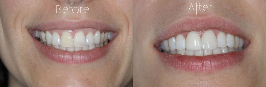 Veneers were placed on this patient's two front teeth to correct the