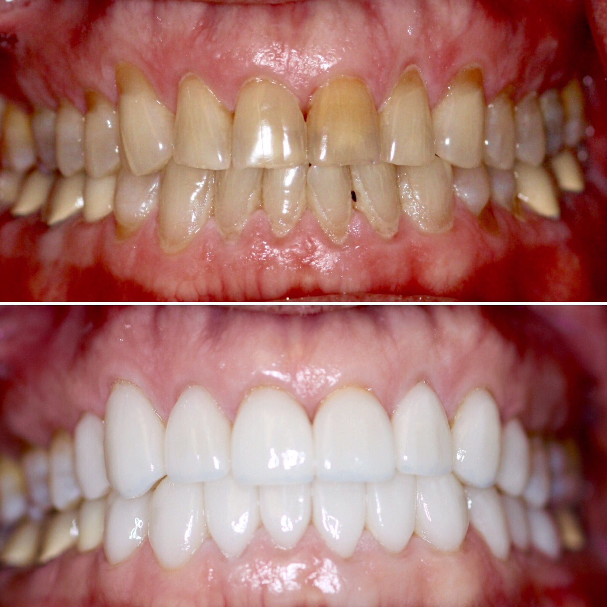 Before and after porcelain veneers by bellevue dentist dr
