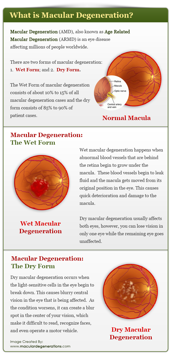 Macular Degeneration Amd Also Known As Age Related Flashcards Heent Questions What Color Is Sclera Vs Conjunctiva If Armd An Eye Disease Affecting Millions Of People Worldwide