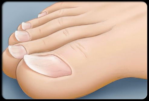 Spoon Shaped Toenails Koilonychia Can Have Many Causes One Of The More Common Is Iron Deficiency Anemia Exposure To Solvents And Chemicals May