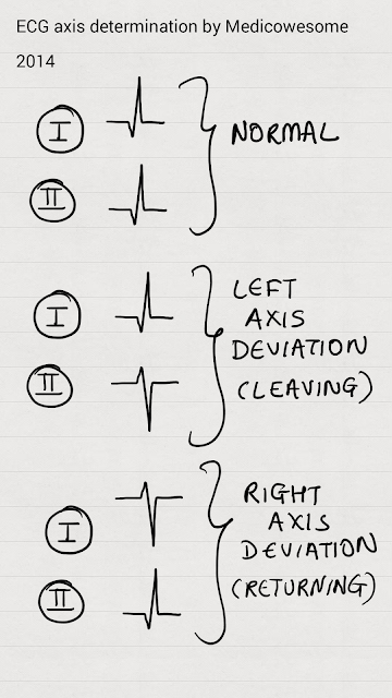 Medicowesome: Evaluating axis from ECG (Mnemonic) #medicalstudents