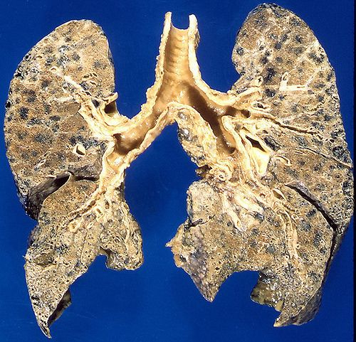 Natural Remedies For Mild Copd