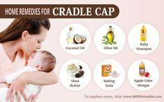 Home Remedies For Cradle Cap Cradle Cap Remedies Baby Cradle Cap Cradle Cap Remedies
