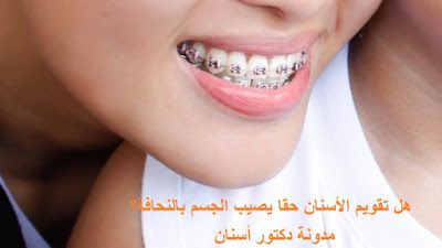 دكتور أسنان هل تقويم الأسنان حقا يصيب الجسم بالنحافة Fake Braces Easy Tutorial How To Make