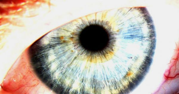 Scientists Just Showed That Human Eyes Can Detect A Single Photon