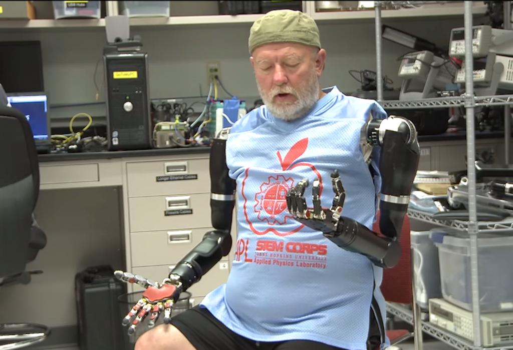 VIDEO: Un hombre sin brazos logra mover prótesis robóticas con su mente
